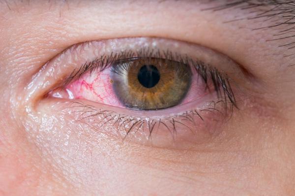 Đau mắt đỏ là một trong những căn bệnh thường gặp