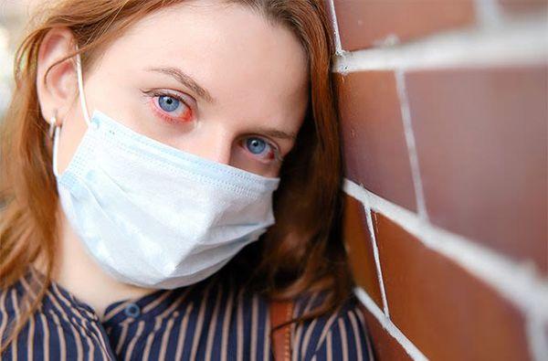 Hầu hết các trường hợp đau mắt đỏ thường do adenovirus gây ra nhưng cũng có thể do virus herpes simplex, virus varicella-zoster và nhiều loại virus khác