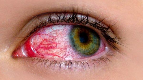 Những người đeo kính áp tròng cần ngừng đeo kính áp tròng ngay khi các triệu chứng đau mắt đỏ bắt đầu