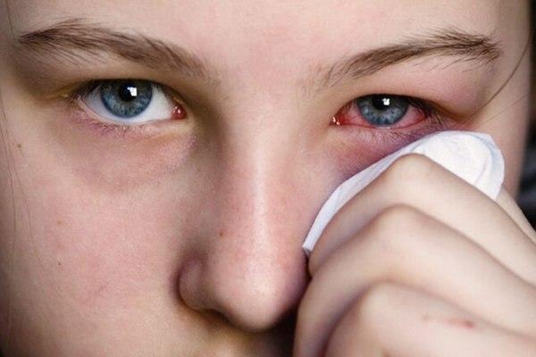 Bệnh đau mắt đỏ kiêng gì? Nguyên nhân mắc bệnh và làm thế nào để chữa trị kịp thời?